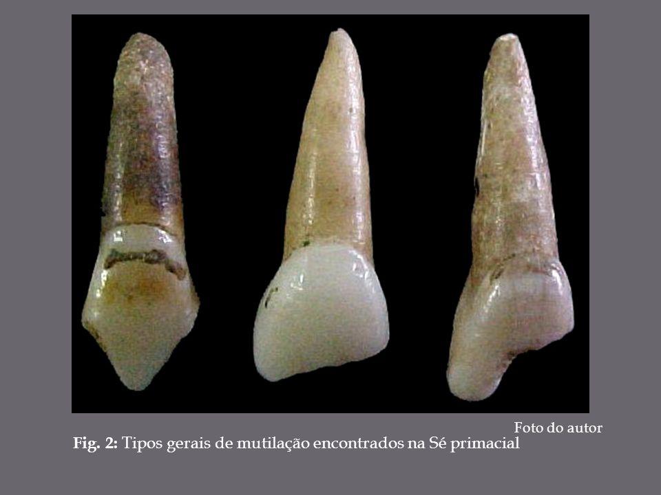 Fig. 2: Tipos gerais de mutilação encontrados na Sé primacial Foto do autor