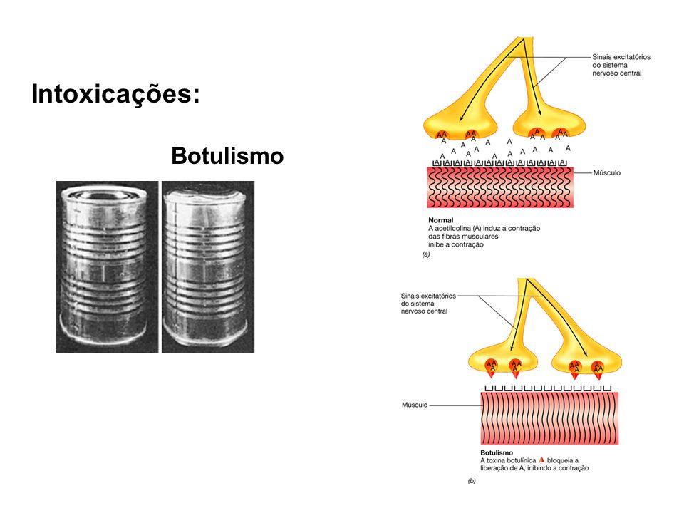 Intoxicações: Botulismo