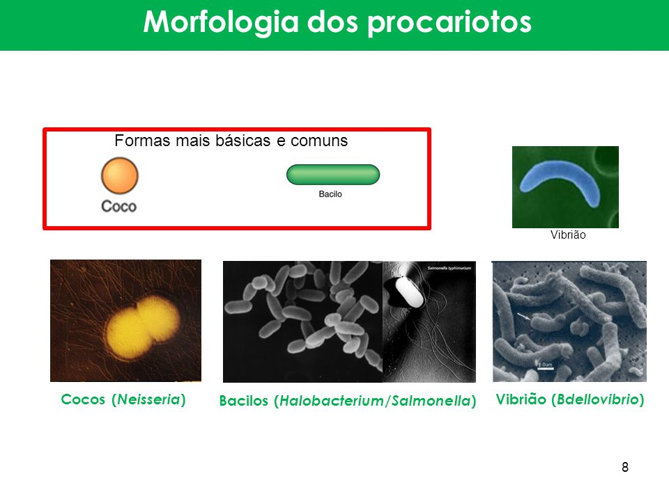 Espirilo ( Spirillum )Espiroqueta ( Leptospira ) Pedunculada ( Rhodomicrobium ) Morfologia dos procariotos 9