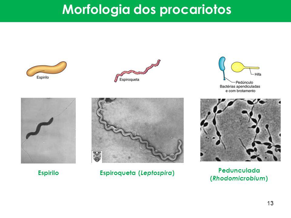 Espirilo Espiroqueta ( Leptospira ) Pedunculada ( Rhodomicrobium ) Morfologia dos procariotos 13