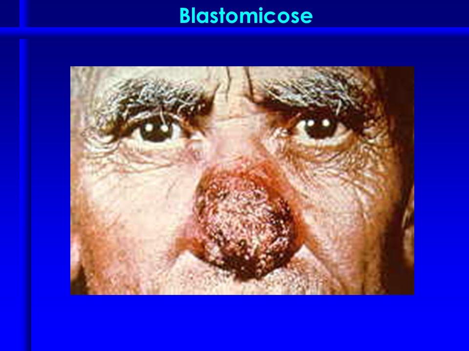 Blastomicose