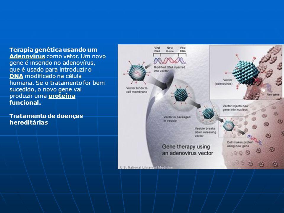 Terapia genética usando um Adenovírus como vetor. Um novo gene é inserido no adenovírus, que é usado para introduzir o DNA modificado na célula humana