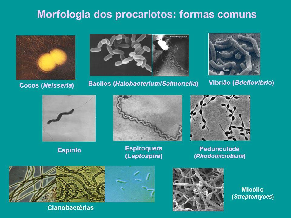 Morfologia dos procariotos: formas comuns Cocos (Neisseria) Bacilos (Halobacterium/Salmonella) Vibrião (Bdellovibrio) Espirilo Espiroqueta (Leptospira