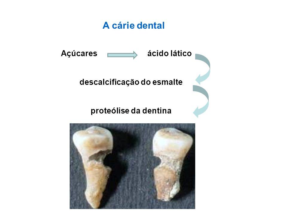 A cárie dental Açúcares ácido lático descalcificação do esmalte proteólise da dentina