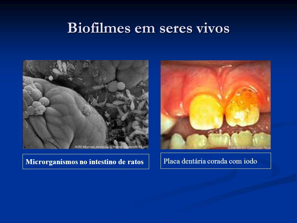 Biofilmes em seres vivos Microrganismos no intestino de ratos Placa dentária corada com iodo