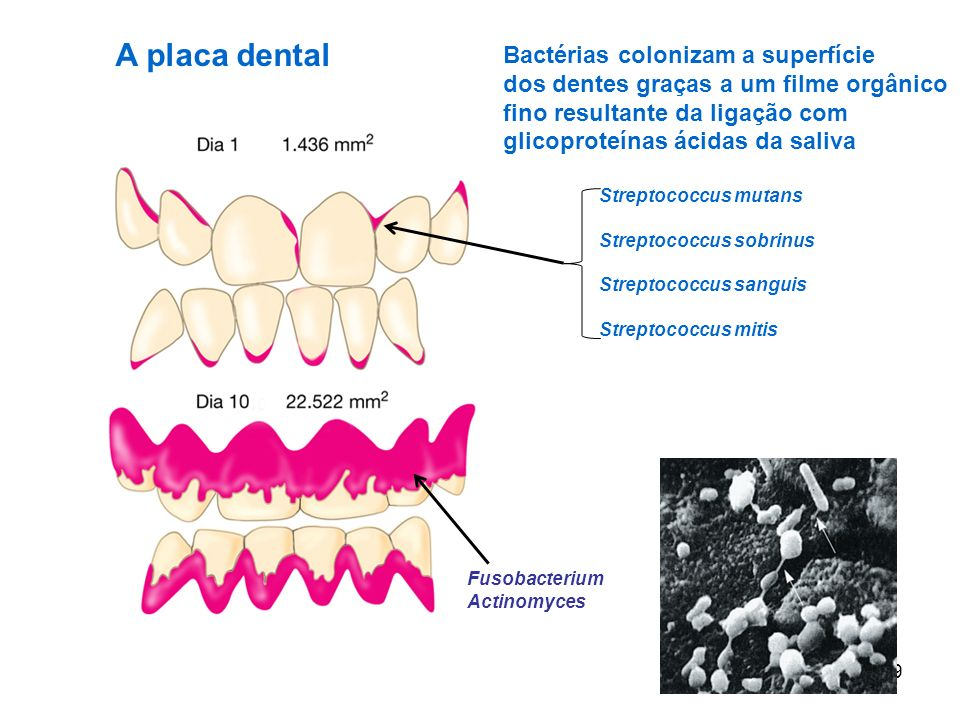 CÁRIE DENTAL destruição dental resultante de uma infecção bacteriana 10