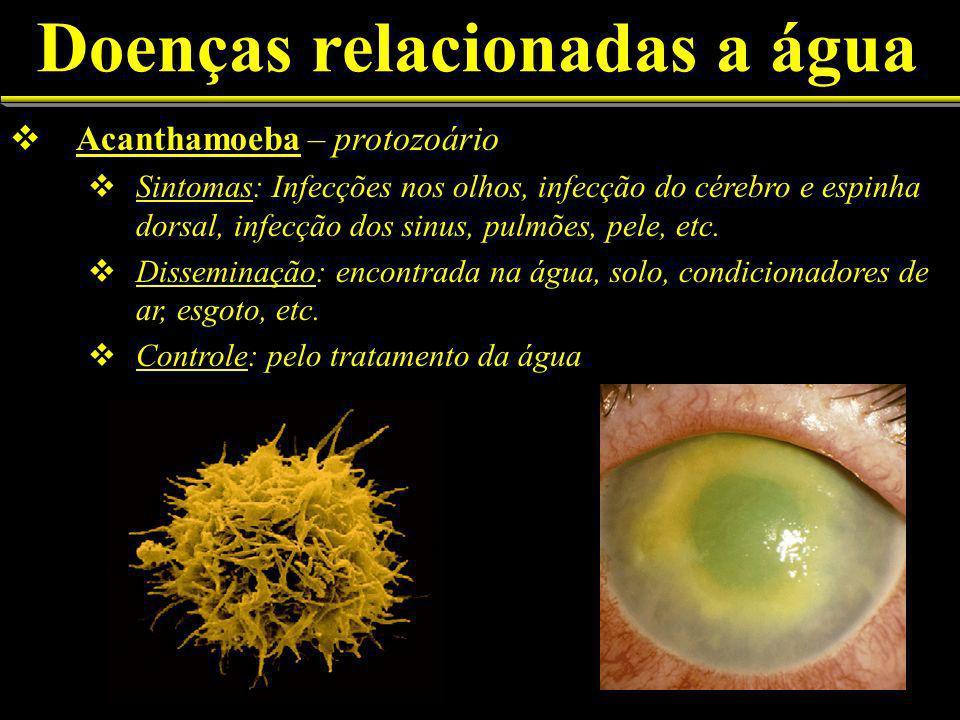 Doenças relacionadas a água Acanthamoeba – protozoário Sintomas: Infecções nos olhos, infecção do cérebro e espinha dorsal, infecção dos sinus, pulmões, pele, etc.