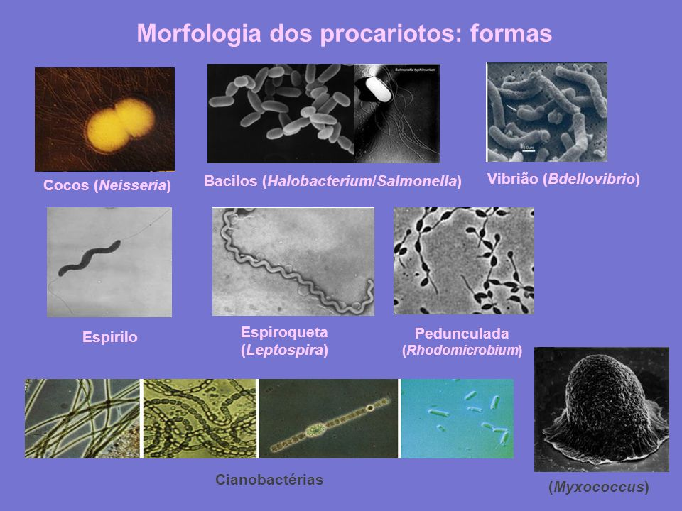 Morfologia dos procariotos: formas Cocos (Neisseria) Bacilos (Halobacterium/Salmonella) Vibrião (Bdellovibrio) Espirilo Espiroqueta (Leptospira) Pedun