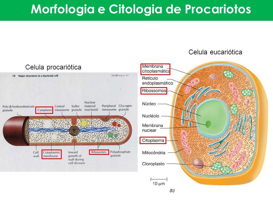 Morfologia e Citologia de Procariotos Celula procariótica Celula eucariótica