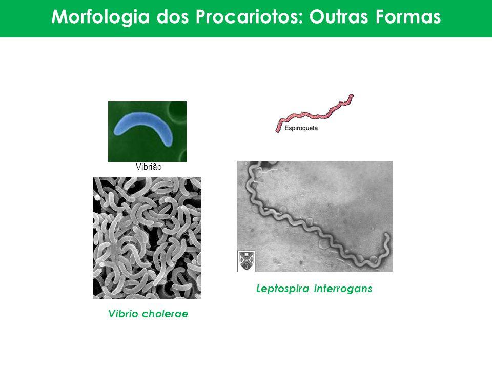 Vibrião Morfologia dos Procariotos: Outras Formas Leptospira interrogans Vibrio cholerae