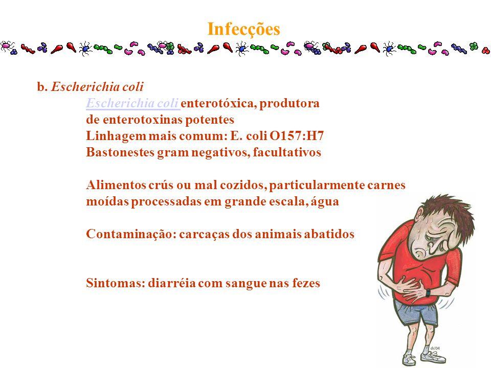 b. Escherichia coli Escherichia coli Escherichia coli enterotóxica, produtora de enterotoxinas potentes Linhagem mais comum: E. coli O157:H7 Bastonest