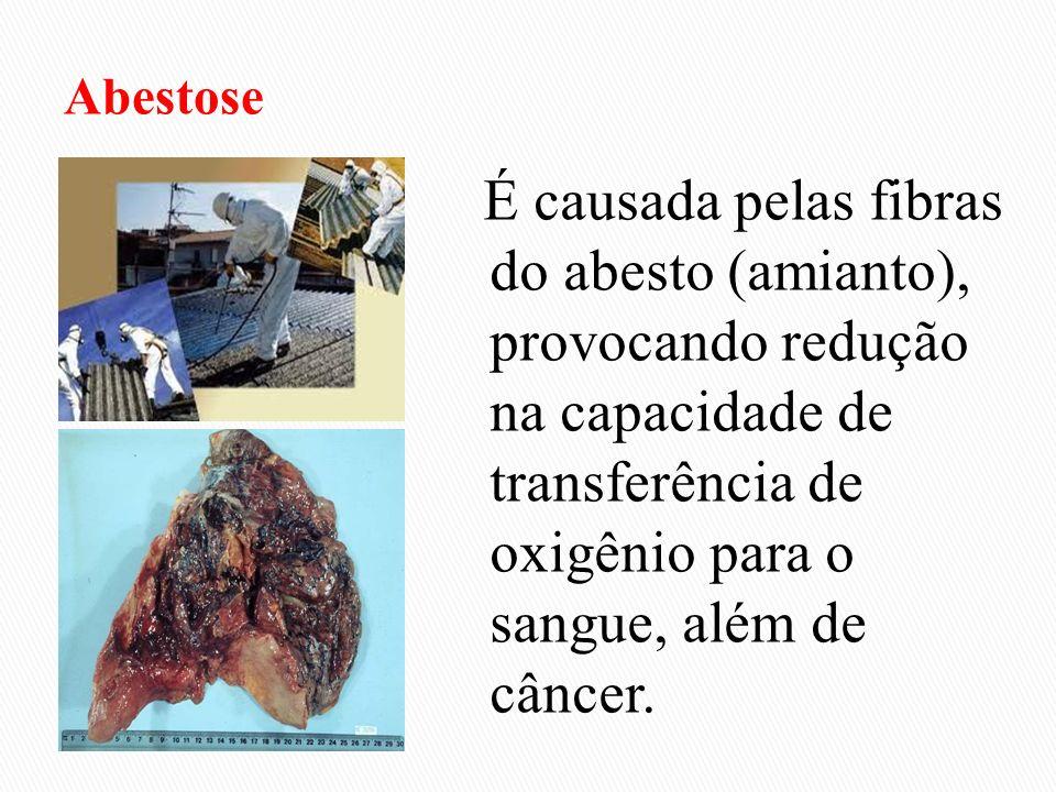É causada pelas fibras do abesto (amianto), provocando redução na capacidade de transferência de oxigênio para o sangue, além de câncer.