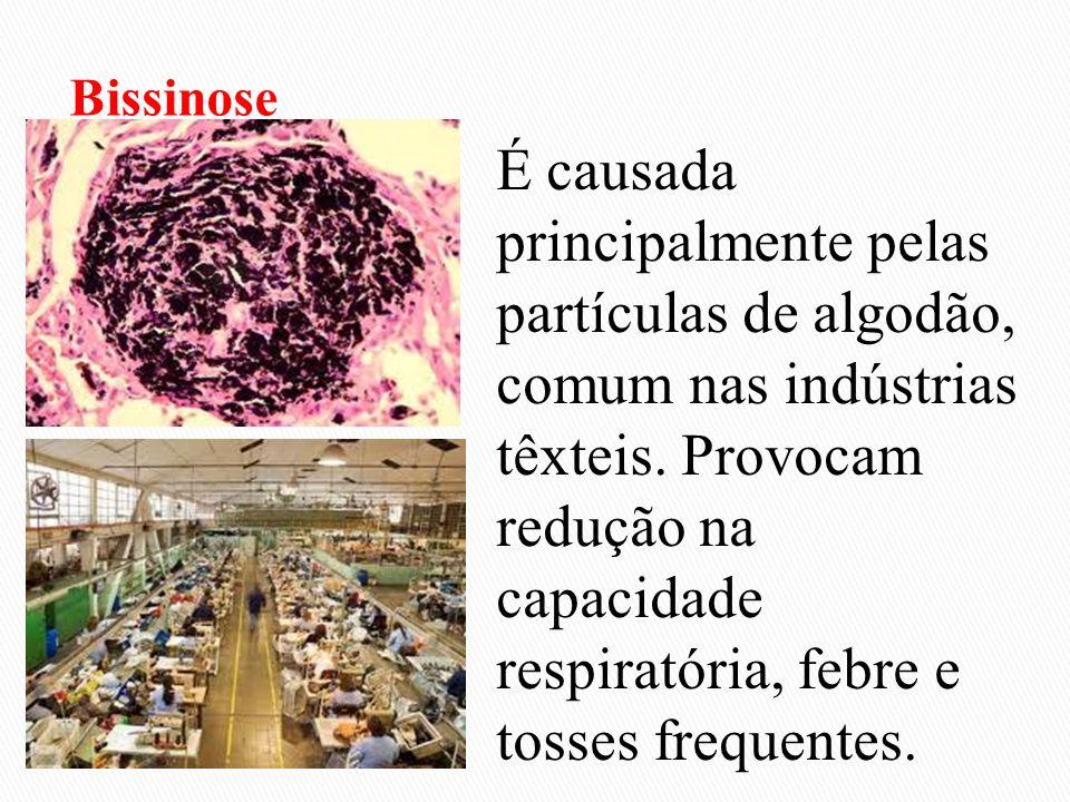 É causada principalmente pelas partículas de algodão, comum nas indústrias têxteis. Provocam redução na capacidade respiratória, febre e tosses freque
