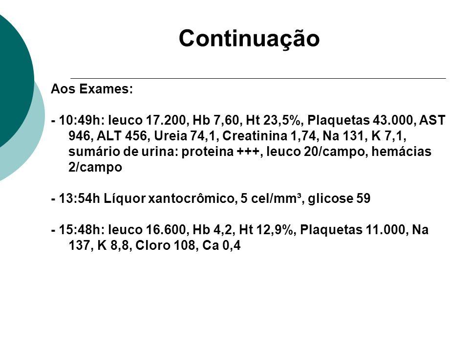 Continuação Aos Exames: - 10:49h: leuco 17.200, Hb 7,60, Ht 23,5%, Plaquetas 43.000, AST 946, ALT 456, Ureia 74,1, Creatinina 1,74, Na 131, K 7,1, sum