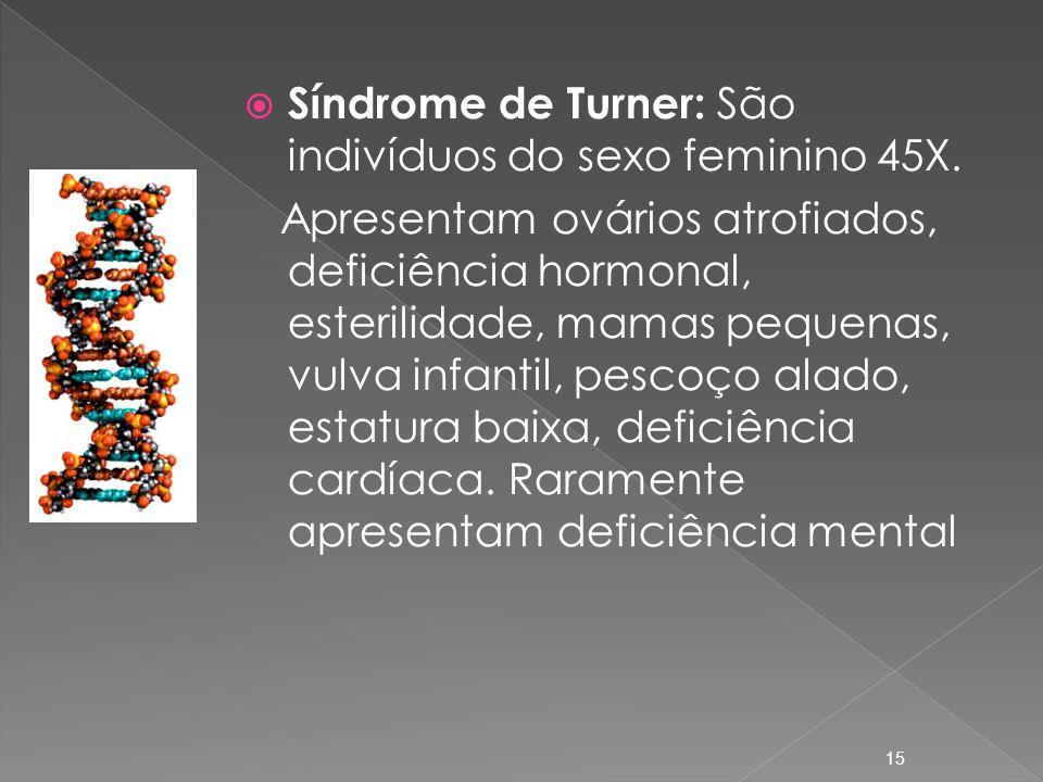 Síndrome de Turner: São indivíduos do sexo feminino 45X.