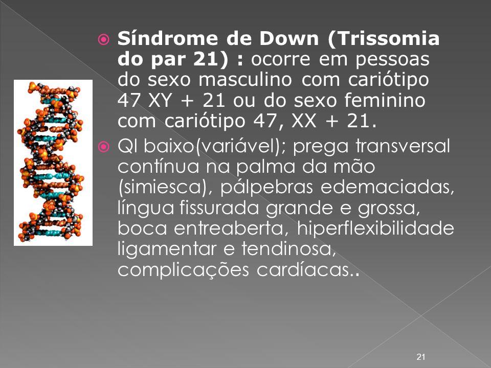 Síndrome de Down (Trissomia do par 21) : ocorre em pessoas do sexo masculino com cariótipo 47 XY + 21 ou do sexo feminino com cariótipo 47, XX + 21.
