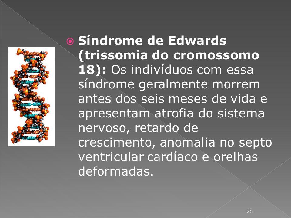 Síndrome de Edwards (trissomia do cromossomo 18): Os indivíduos com essa síndrome geralmente morrem antes dos seis meses de vida e apresentam atrofia