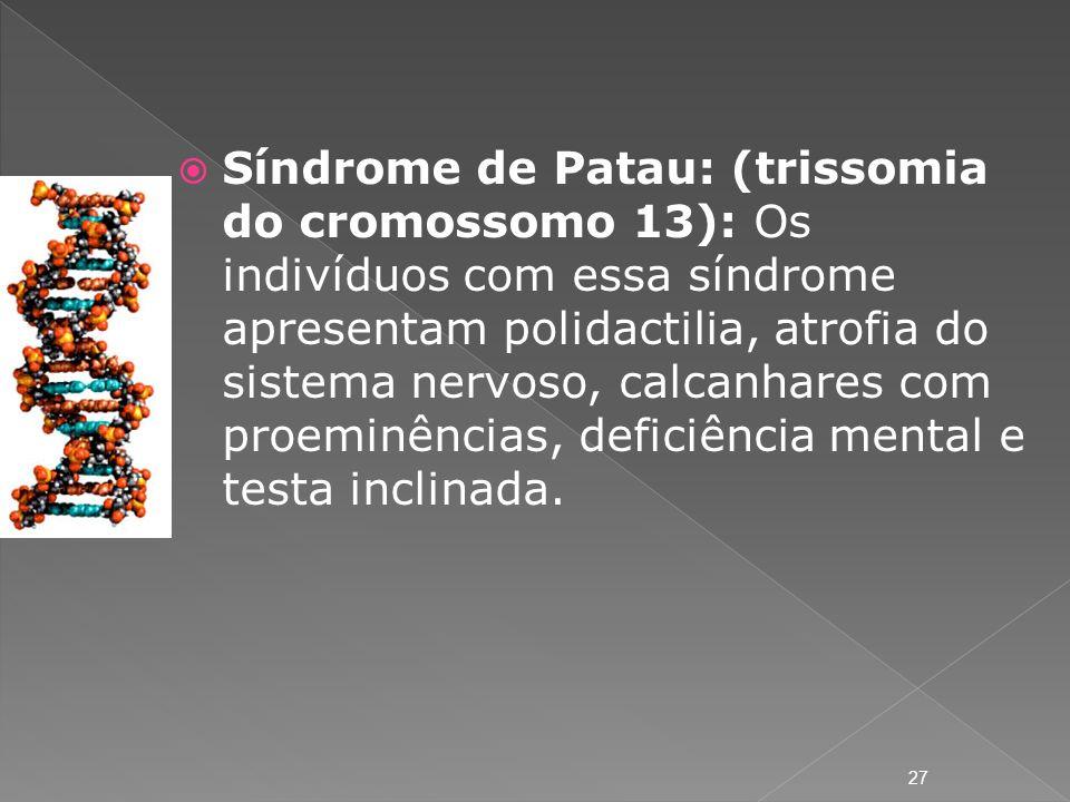 Síndrome de Patau: (trissomia do cromossomo 13): Os indivíduos com essa síndrome apresentam polidactilia, atrofia do sistema nervoso, calcanhares com