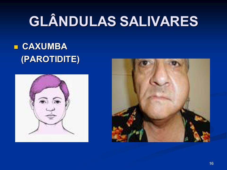 GLÂNDULAS SALIVARES CAXUMBA CAXUMBA (PAROTIDITE) (PAROTIDITE) 16