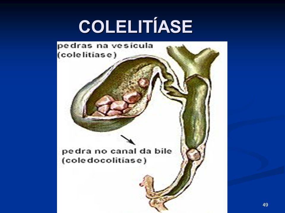 COLELITÍASE COLELITÍASE 49