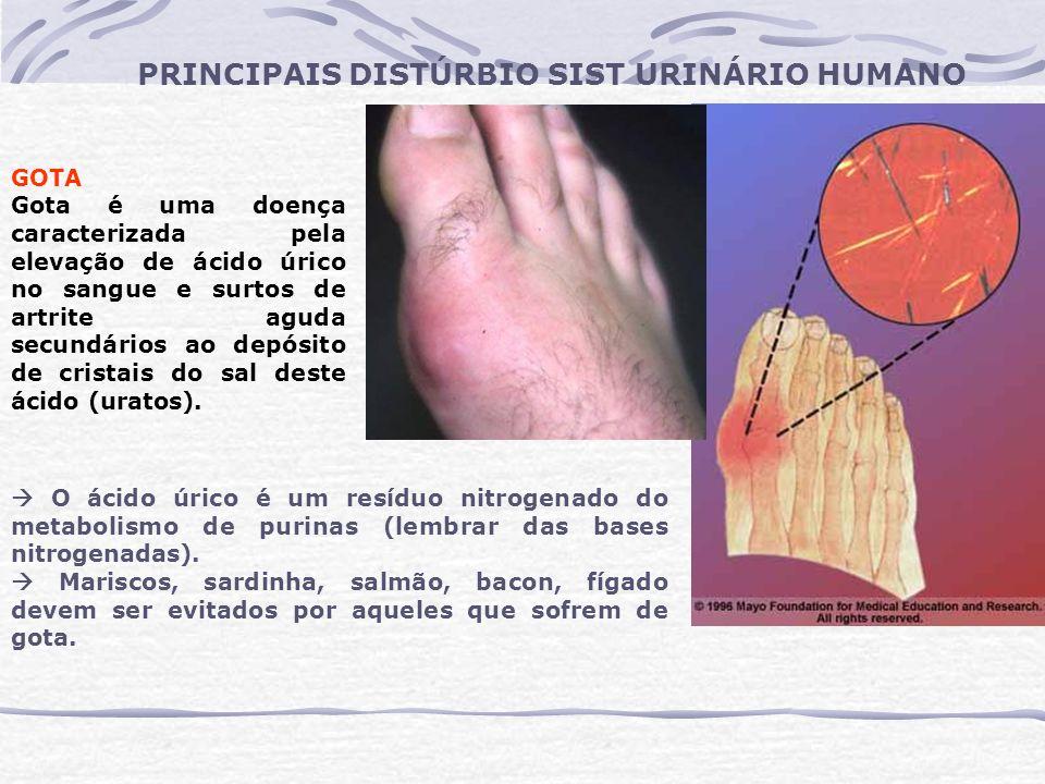 PRINCIPAIS DISTÚRBIO SIST URINÁRIO HUMANO GOTA Gota é uma doença caracterizada pela elevação de ácido úrico no sangue e surtos de artrite aguda secund
