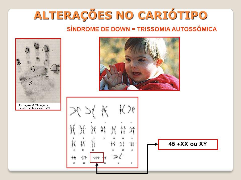 ALTERAÇÕES NO CARIÓTIPO SÍNDROME DE KLINEFELTER = TRISSOMIA SEXUAL 44 +XXY = 47 CROMOSSOMOS