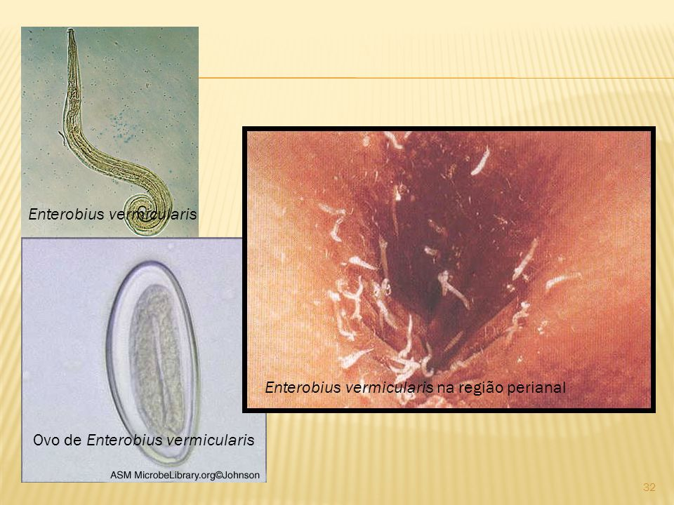 Enterobius vermicularis Ovo de Enterobius vermicularis Enterobius vermicularis na região perianal 32