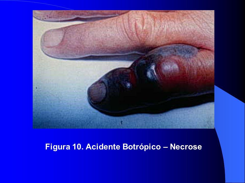 Figura 10. Acidente Botrópico – Necrose