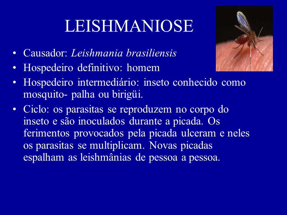 LEISHMANIOSE Causador: Leishmania brasiliensis Hospedeiro definitivo: homem Hospedeiro intermediário: inseto conhecido como mosquito- palha ou birigüi