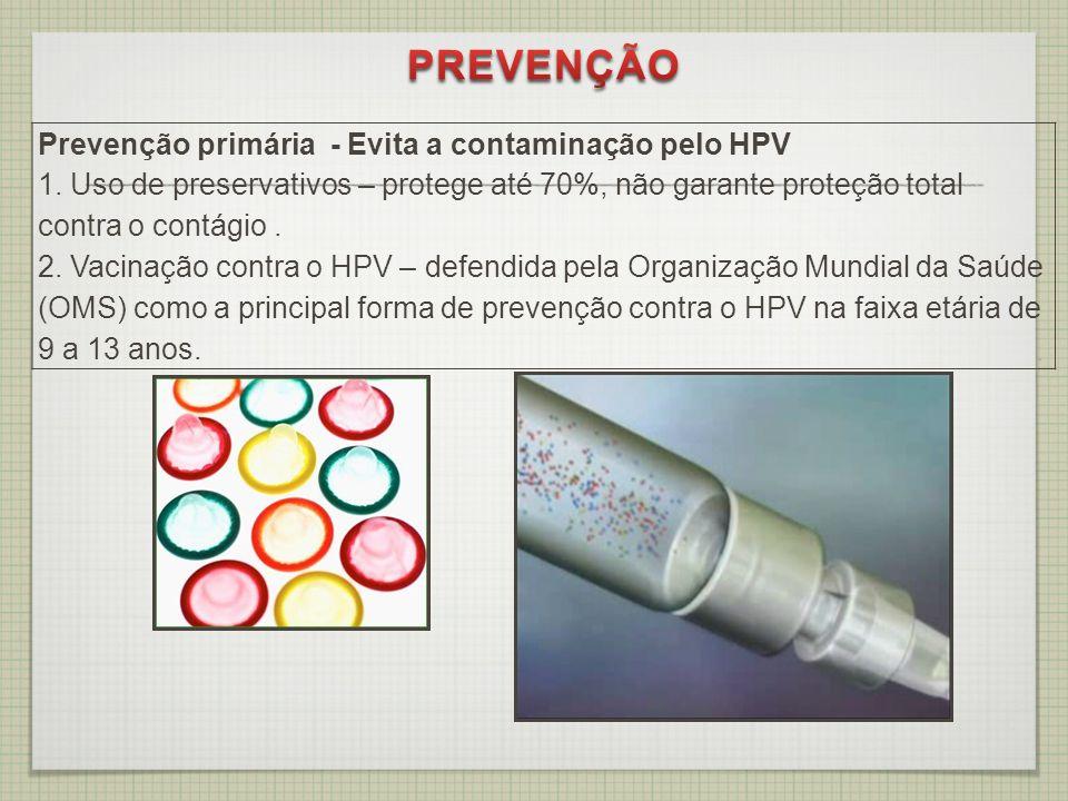 Prevenção primária - Evita a contaminação pelo HPV 1. Uso de preservativos – protege até 70%, não garante proteção total contra o contágio. 2. Vacinaç