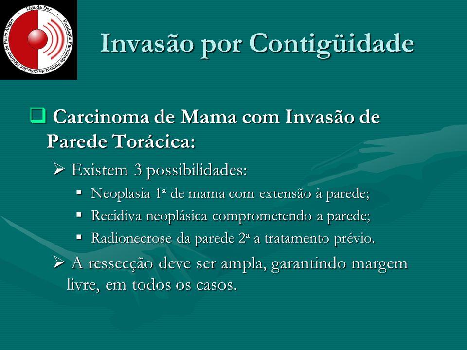 Invasão por Contigüidade Carcinoma de Mama com Invasão de Parede Torácica: Carcinoma de Mama com Invasão de Parede Torácica: Existem 3 possibilidades: