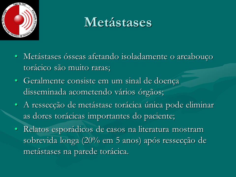 Metástases Metástases ósseas afetando isoladamente o arcabouço torácico são muito raras;Metástases ósseas afetando isoladamente o arcabouço torácico s