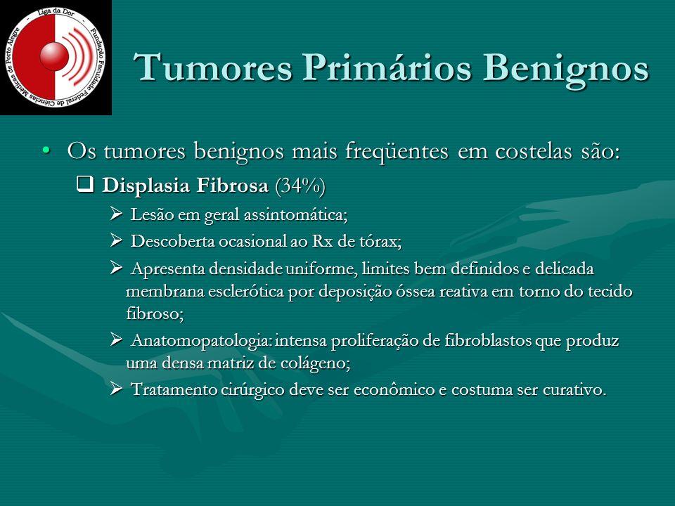 Tumores Primários Benignos Os tumores benignos mais freqüentes em costelas são:Os tumores benignos mais freqüentes em costelas são: Displasia Fibrosa