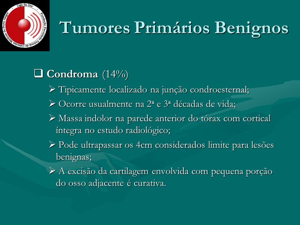 Tumores Primários Benignos Condroma (14%) Condroma (14%) Tipicamente localizado na junção condroesternal; Tipicamente localizado na junção condroester