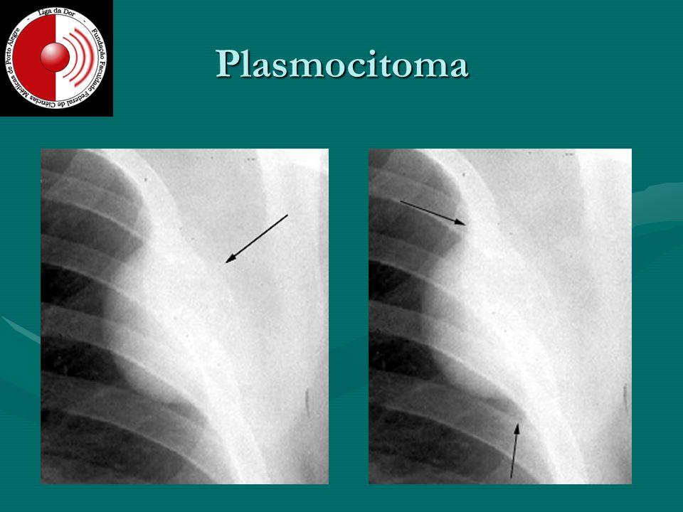 Plasmocitoma