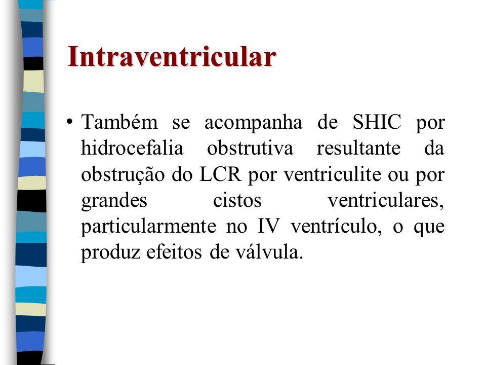 Intraventricular Também se acompanha de SHIC por hidrocefalia obstrutiva resultante da obstrução do LCR por ventriculite ou por grandes cistos ventric