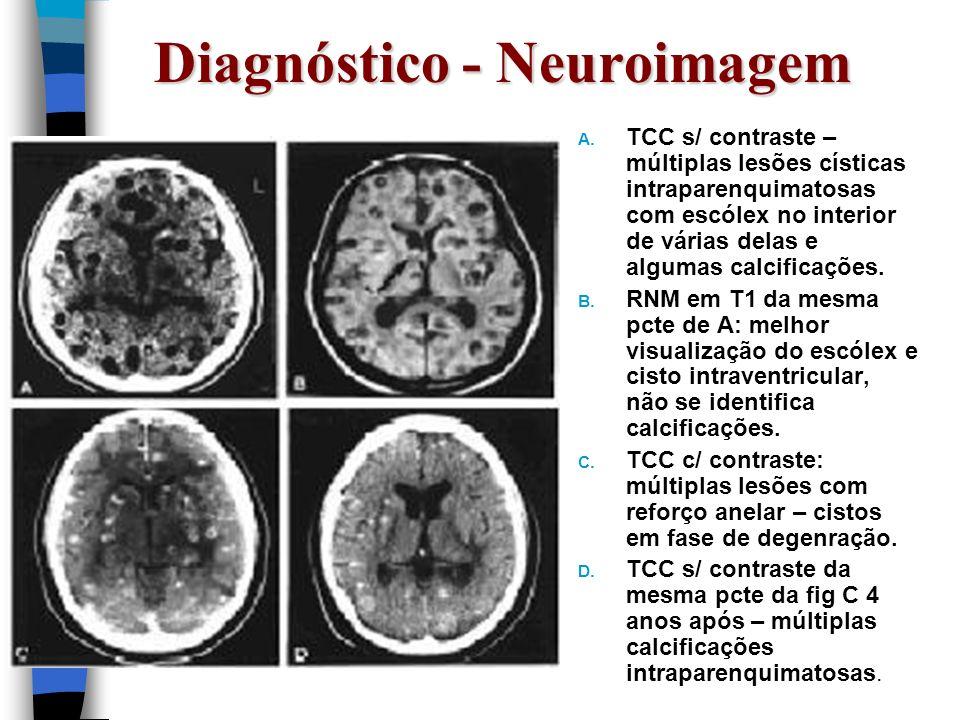 Diagnóstico - Neuroimagem A. TCC s/ contraste – múltiplas lesões císticas intraparenquimatosas com escólex no interior de várias delas e algumas calci