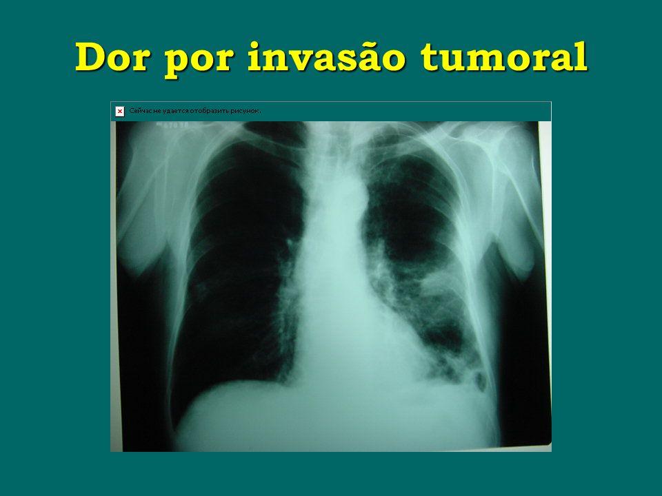 Dor por invasão tumoral