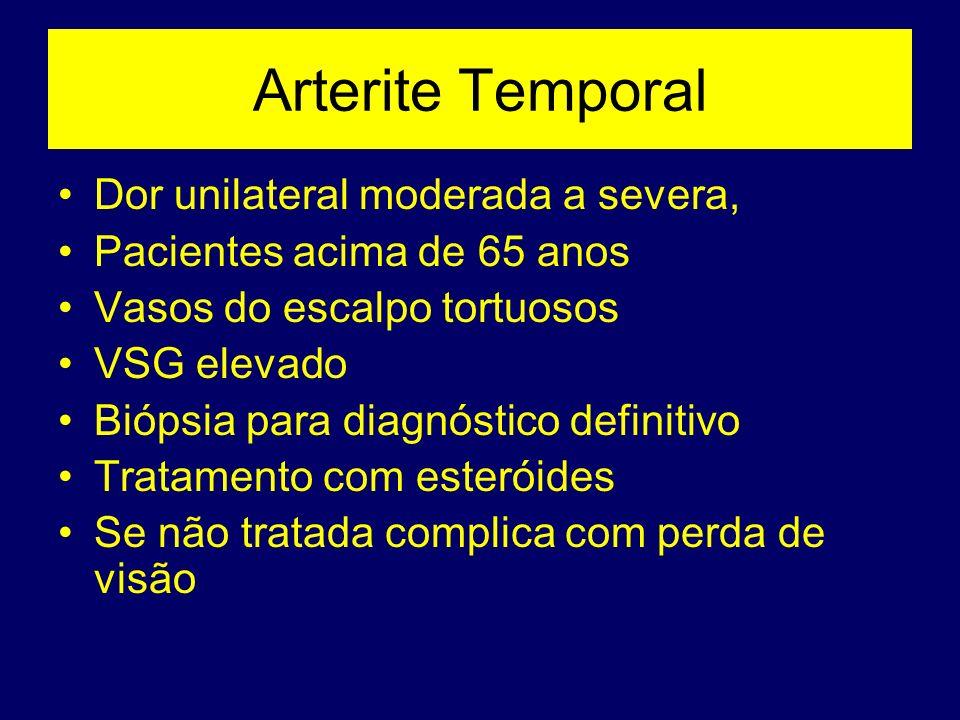 Arterite Temporal Dor unilateral moderada a severa, Pacientes acima de 65 anos Vasos do escalpo tortuosos VSG elevado Biópsia para diagnóstico definit