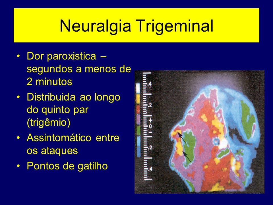 Neuralgia Trigeminal Dor paroxistica – segundos a menos de 2 minutos Distribuida ao longo do quinto par (trigêmio) Assintomático entre os ataques Pont