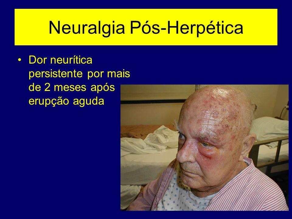 Neuralgia Pós-Herpética Dor neurítica persistente por mais de 2 meses após erupção aguda
