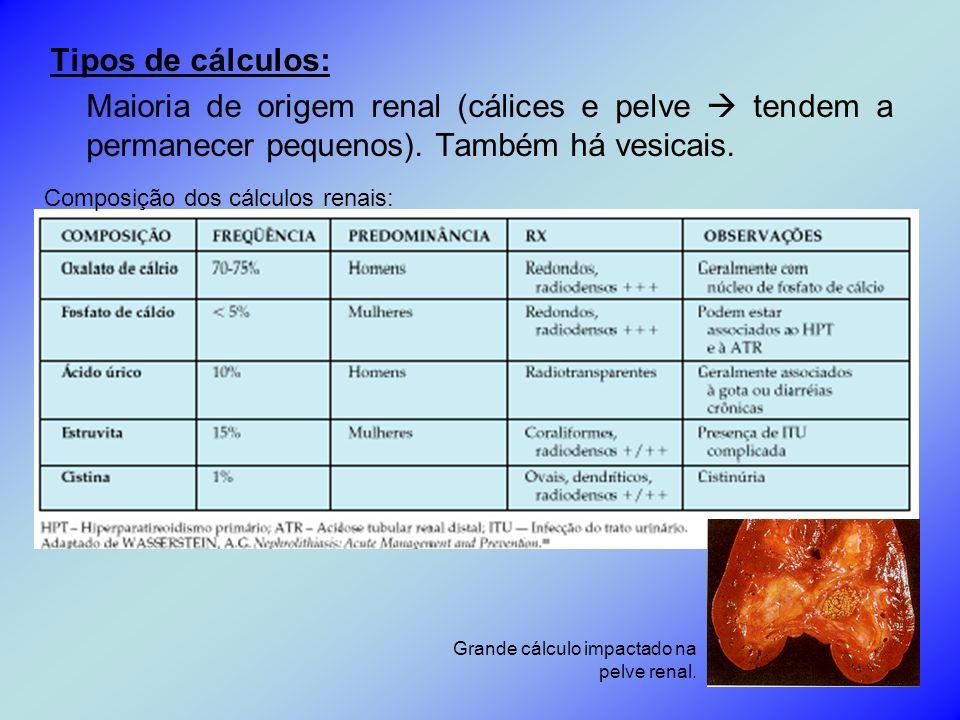 Tipos de cálculos: Maioria de origem renal (cálices e pelve tendem a permanecer pequenos). Também há vesicais. Composição dos cálculos renais: Grande