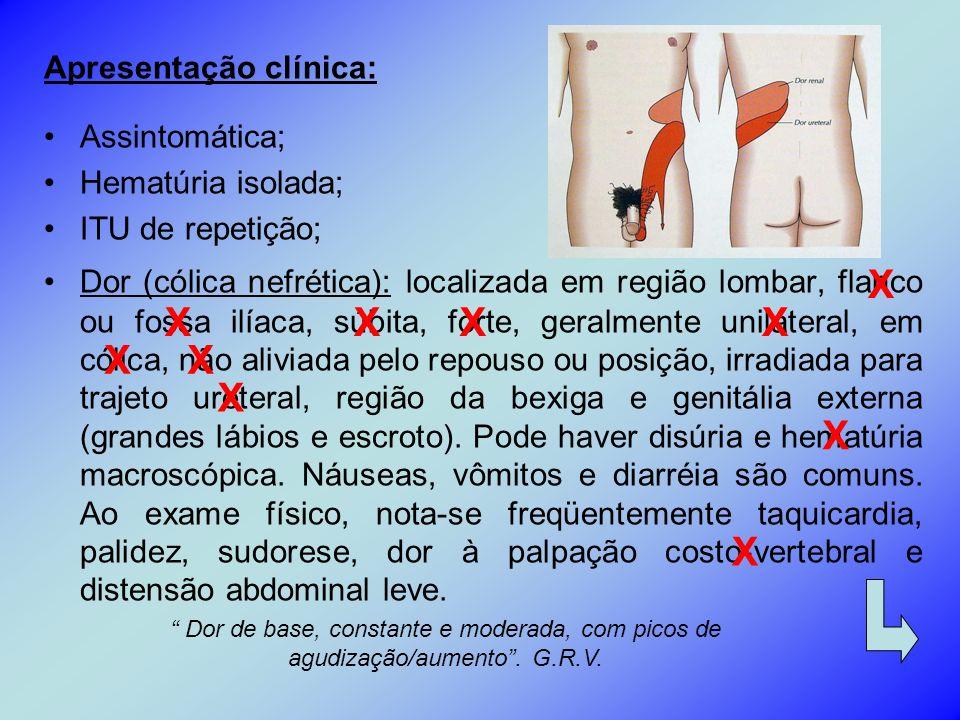 Apresentação clínica: Assintomática; Hematúria isolada; ITU de repetição; Dor (cólica nefrética): localizada em região lombar, flanco ou fossa ilíaca,