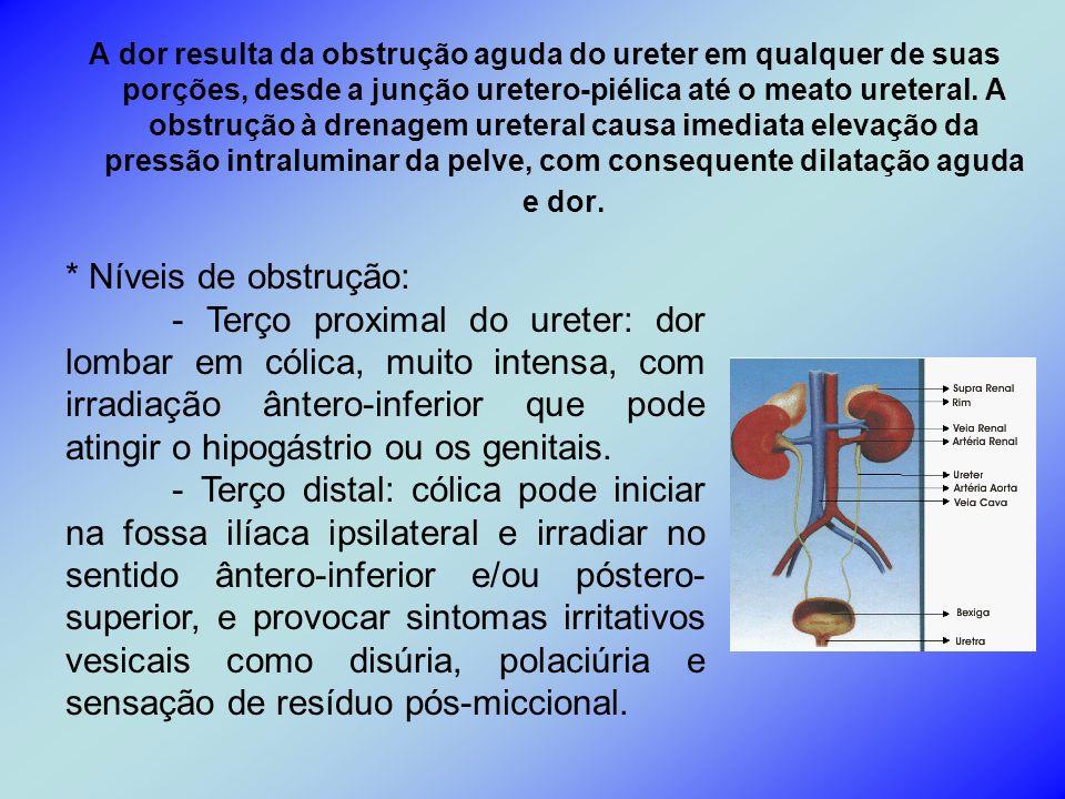 A dor resulta da obstrução aguda do ureter em qualquer de suas porções, desde a junção uretero-piélica até o meato ureteral. A obstrução à drenagem ur