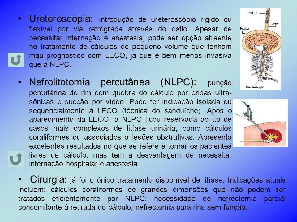 Ureteroscopia: introdução de ureteroscópio rígido ou flexível por via retrógrada através do óstio. Apesar de necessitar internação e anestesia, pode s