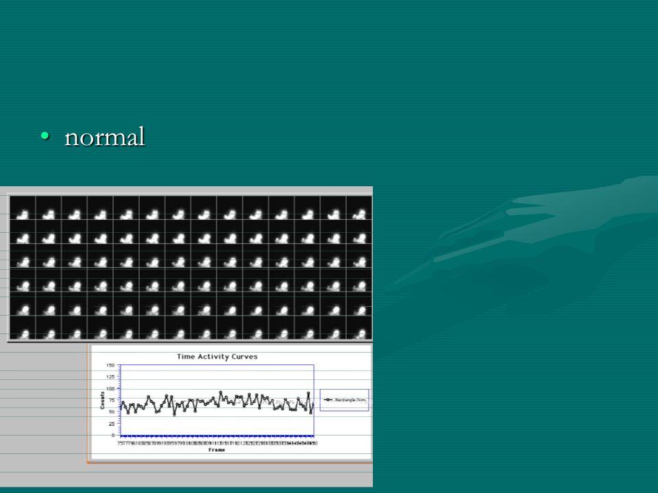 normalnormal
