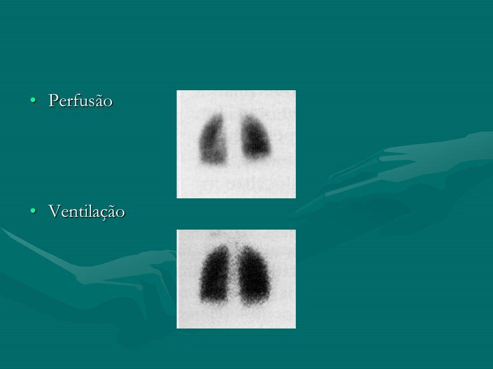 PerfusãoPerfusão VentilaçãoVentilação
