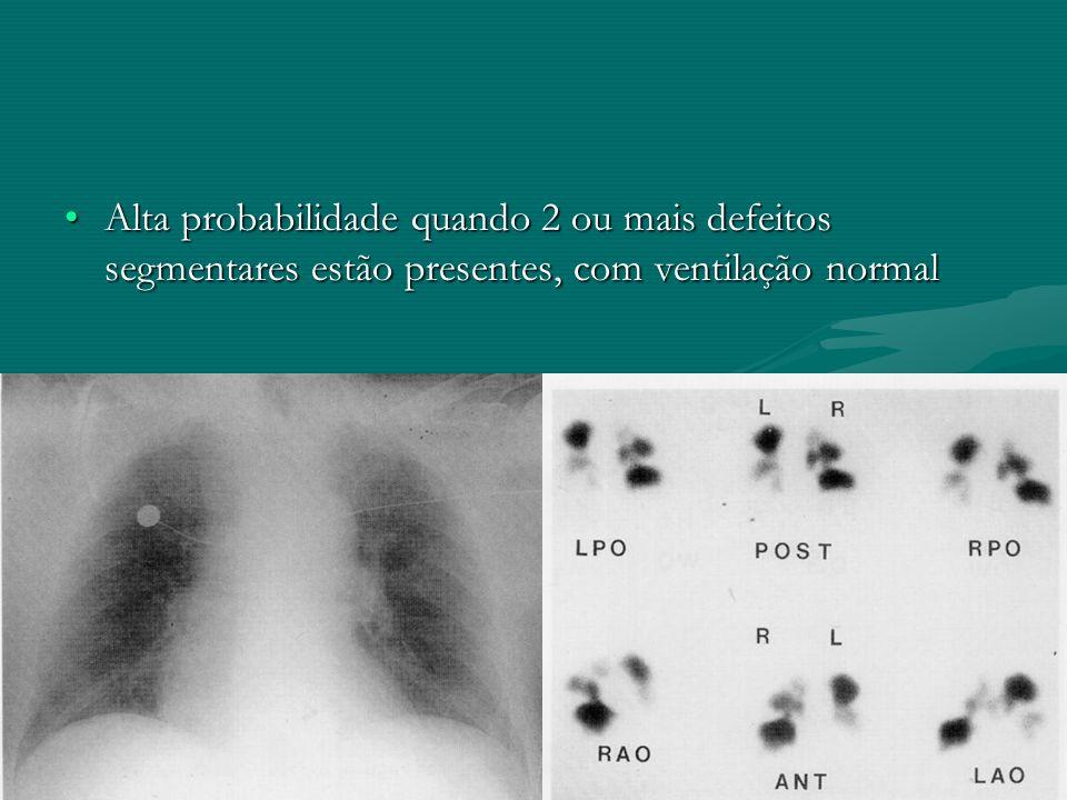 Alta probabilidade quando 2 ou mais defeitos segmentares estão presentes, com ventilação normalAlta probabilidade quando 2 ou mais defeitos segmentare
