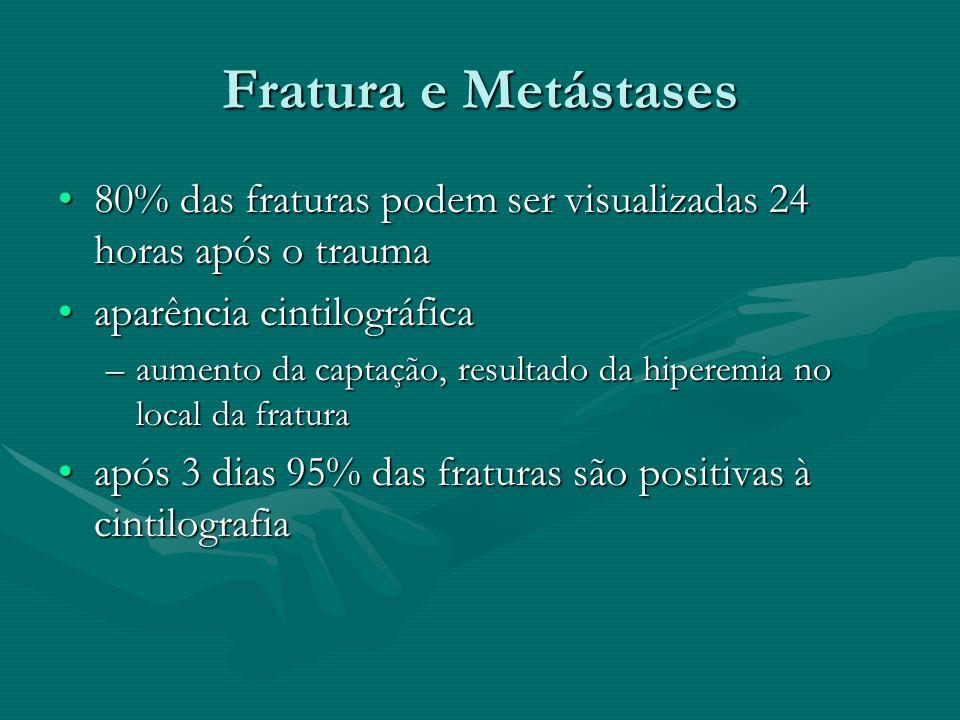 Fratura e Metástases 80% das fraturas podem ser visualizadas 24 horas após o trauma80% das fraturas podem ser visualizadas 24 horas após o trauma apar