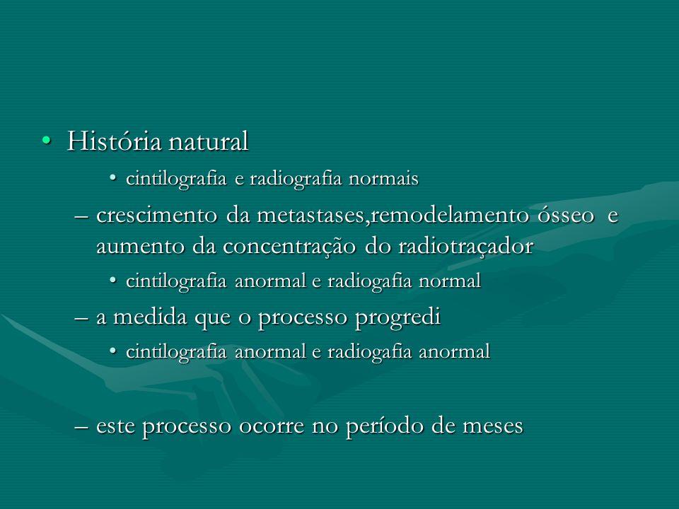 História naturalHistória natural cintilografia e radiografia normaiscintilografia e radiografia normais –crescimento da metastases,remodelamento ósseo
